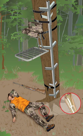 Illustration of injured hunter lying on the ground, who fell from a treestand and who was not wearing an FAS